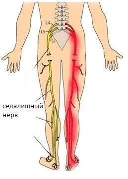 Боль в ноге с тыльной стороны колена